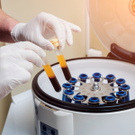 Platelet Rich Plasma Therapy NYC