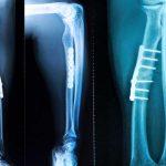 Intramedullary Implants