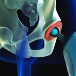 Uses of Hip Implants in Treatment of Hip Fractures