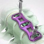 Artificial Cervical Discs– Spine surgeons