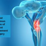 Most Common Types of Joint Replacement Surgery – Aditi Hospital Mulund