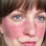 Home Remedies For Rosacea Bumps