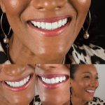 Periodontal Disease – What it is and How to Treat it
