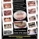 All on 4 dental implants at centre for implant dentistry