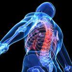 Entender Sobre Los Implantes Espinales