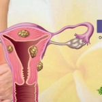 Ayurvedic Treatment for Gynecology Diseases| Gynecological Disorders