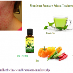 Granuloma Annulare Causes, Symptoms, Diagnosis, and Natural Herbal Treatment