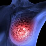 Breast Cancer Treatment in Kolkata, India By Dr. Tanmoy Mukhopadhyay