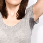 Excessive Sweating Treatment by Lucere in Edmonton