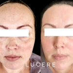 Everything You Need to Know About This Powerful Skin Resurfacing Treatment