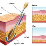Top 10 Things to Know Before You Undergo a Liposuction Surgery