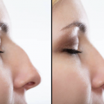 The Pros and Cons of A Rhinoplasty Surgery or A Nose Job